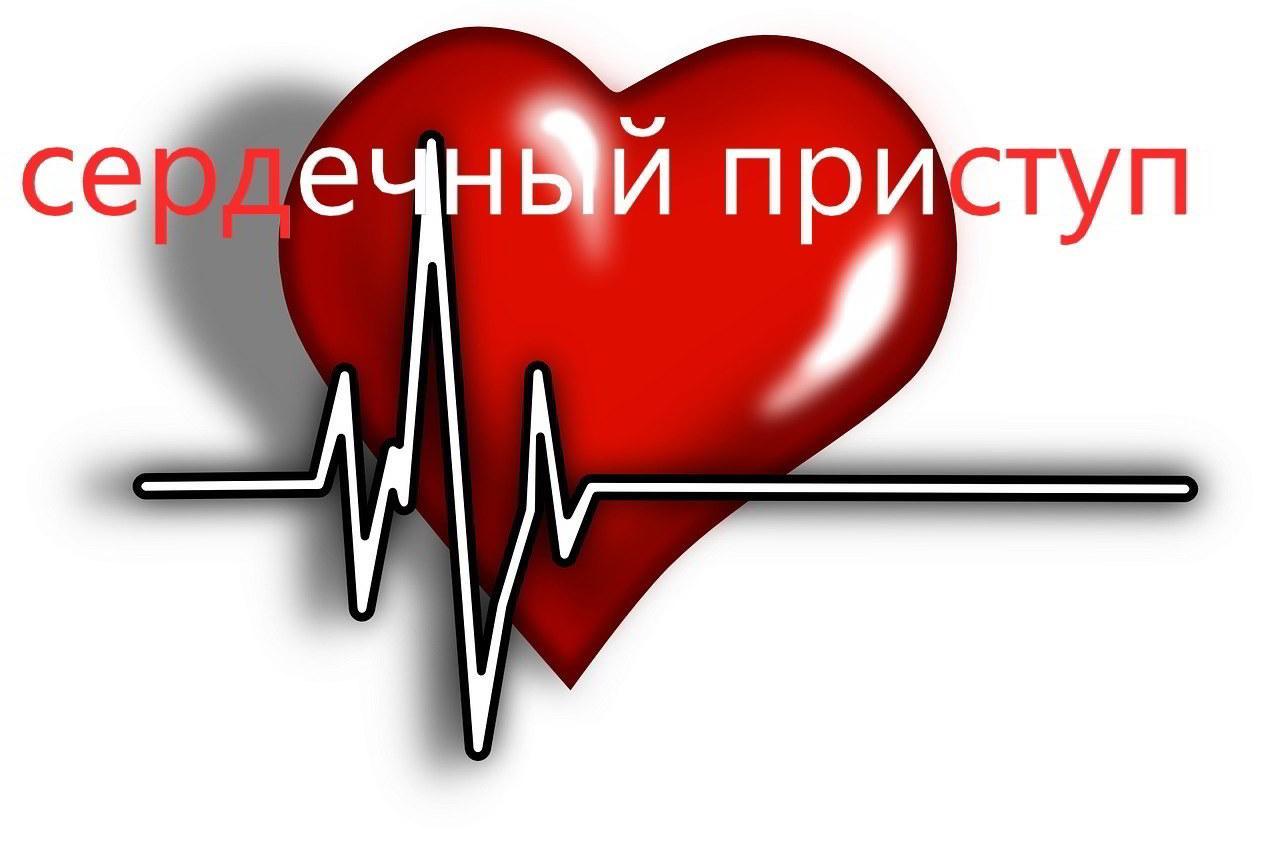 сердечный приступ основная