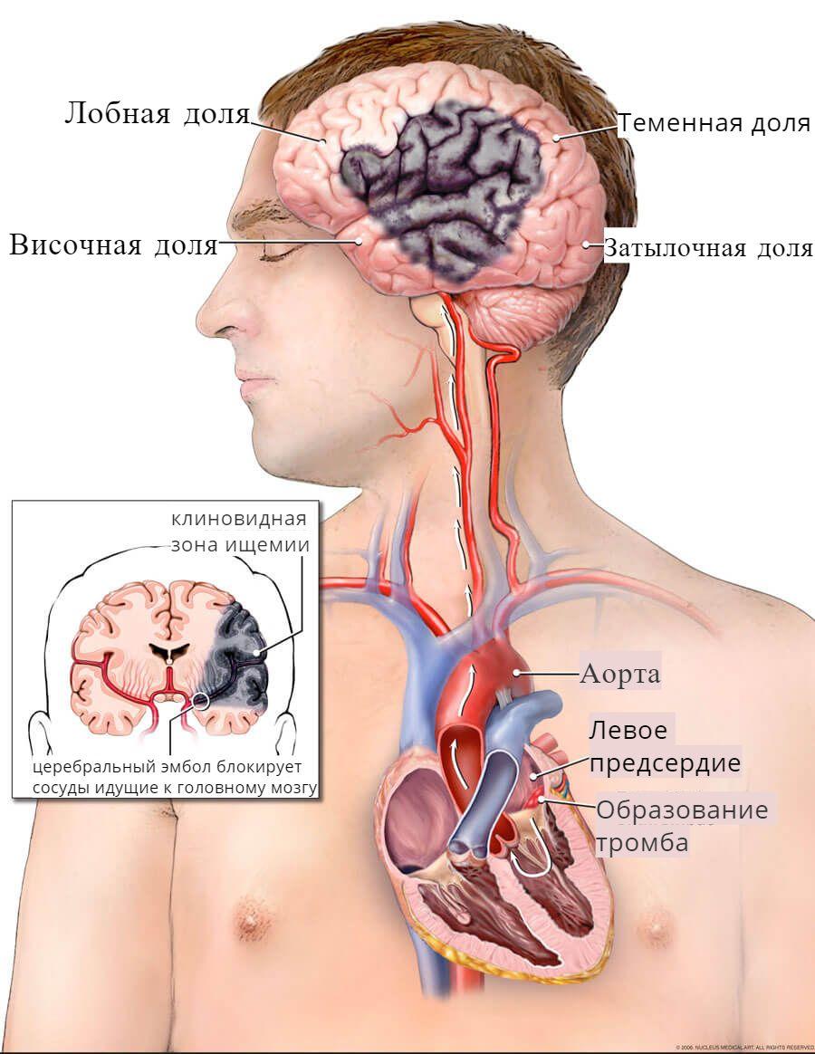 инсульт при мерцательной аритмии