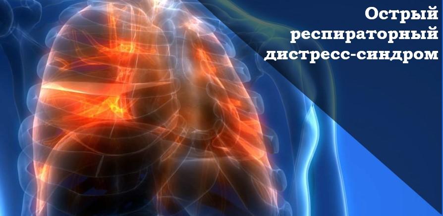 Острый респираторный дистресс-синдром. ОРДС