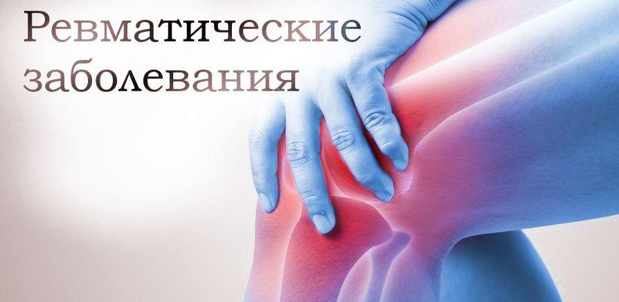 ревматические заболевания