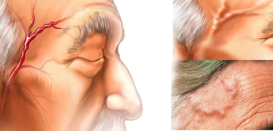 Гигантоклеточный артериит. Симптомы