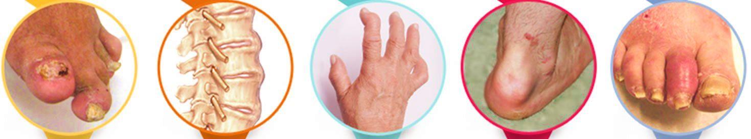 Псориатический артрит. Виды