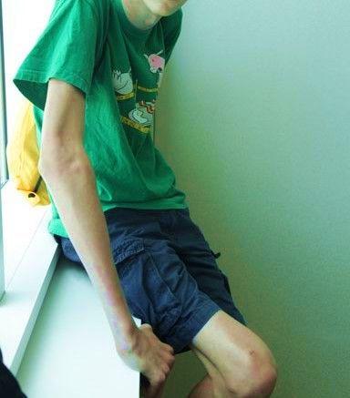 Синдром Марфана длинные конечности