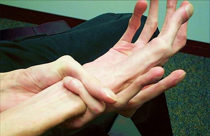 Синдром Марфана длинные руки